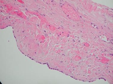 Histology demonstrating biliary epithelium lining