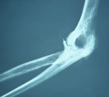 Chronic severe arthritis, fusion, and loss of cart