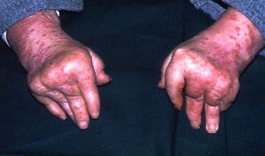 Arthritis mutilans, a typically psoriatic pattern