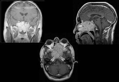 Esthesioneuroblastoma. A 39-year-old man presented