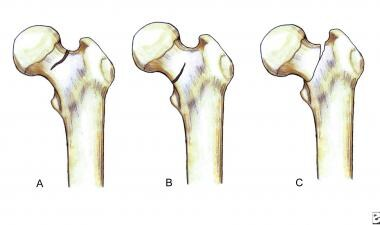 Classification of femoral neck stress fractures.