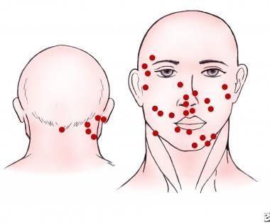 Common distribution of Merkel cell carcinoma in th