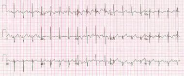 ECG from a patient with a partial atrioventricular