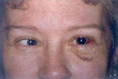 This patient is a 55-year-old woman who originally