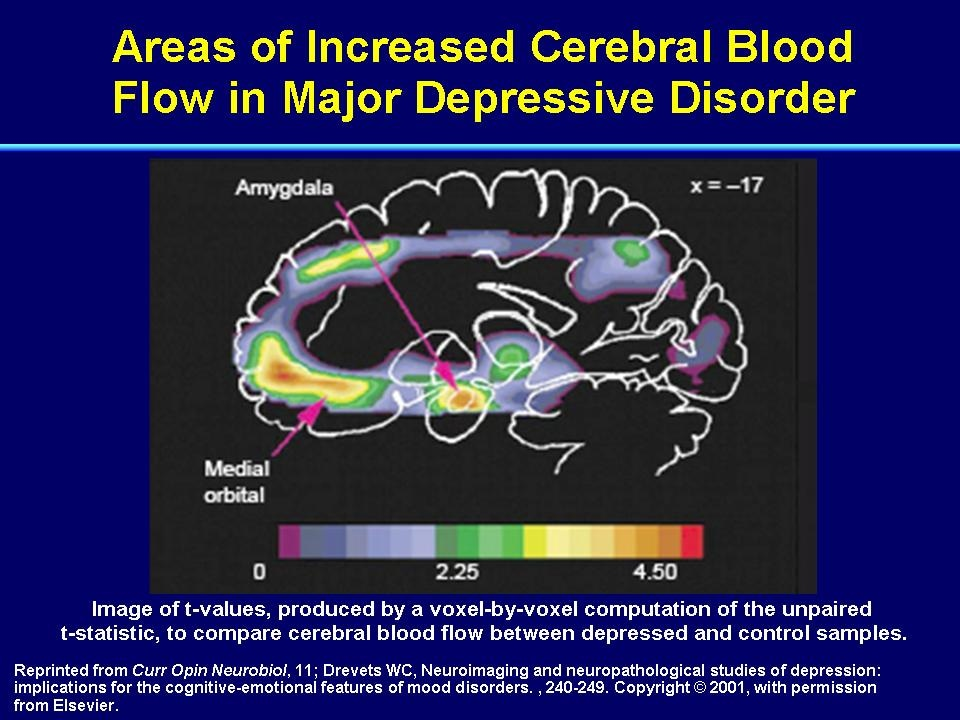 a study on depressive disorder Adults ages 18 65 with a major depressive disorder and current depression if taking an antidepressant,  in major depressive disorder study type:.