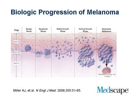 metastatic melanoma current treatments amp guidelines melanoma diagram