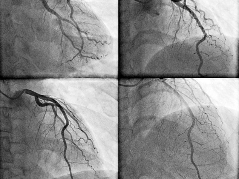 AVERT Device Cuts Contrast-Agent Use at PCI, Renal Benefit Unsure