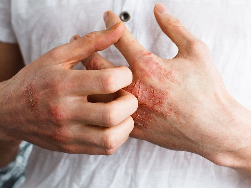 atopic dermatitis | medscape, Human Body