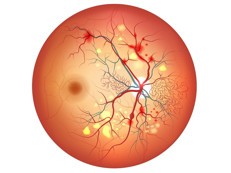 Ranibizumab Deemed Major Advance for Diabetic Retinopathy