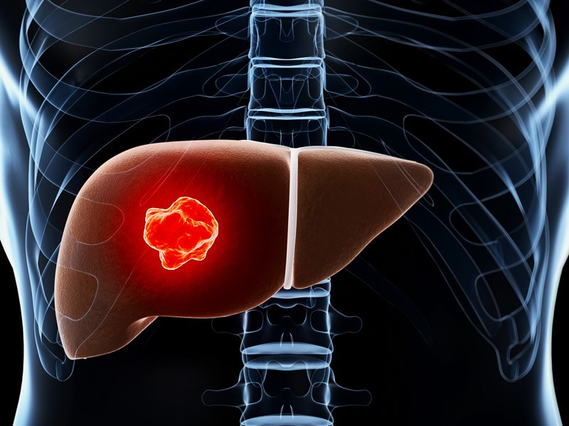 Liver Cancer Found in Hepatitis C Patients on New Antivirals