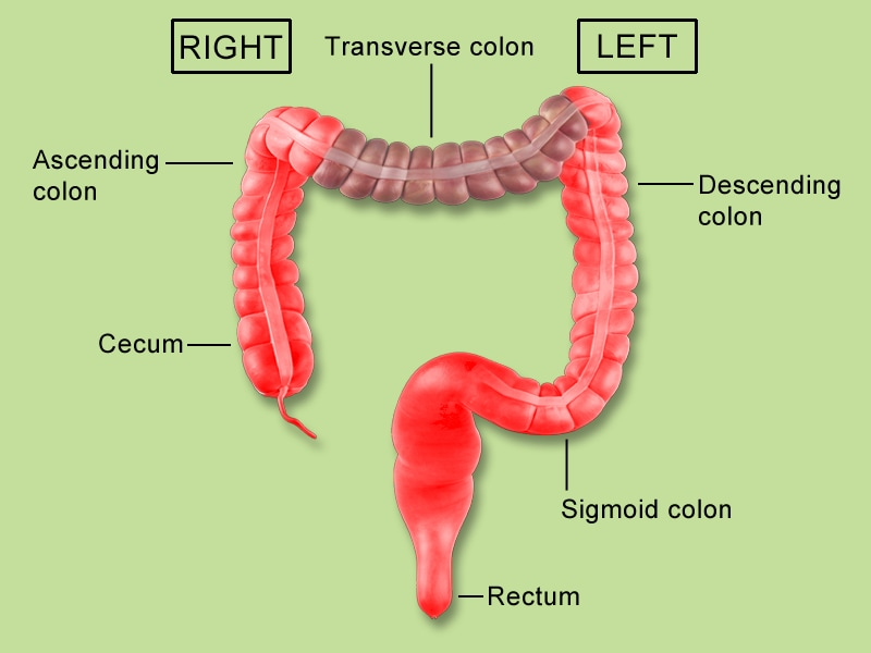 Big Difference in Colorectal Cancer on Right vs Left Side