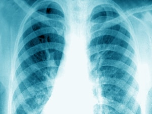 Health Record Change Curbs Daily Chest X-rays in ICUs