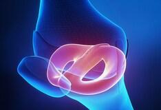 Gnc Triflex Osteo Bi Flex Plus Msm Glucosamine Sulfate