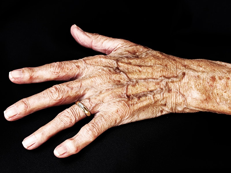 Psoriatic Arthritis Imaging: Overview, Radiography