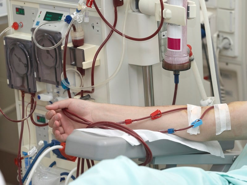 Wearable Artificial Kidney Potential Alternative to Dialysis