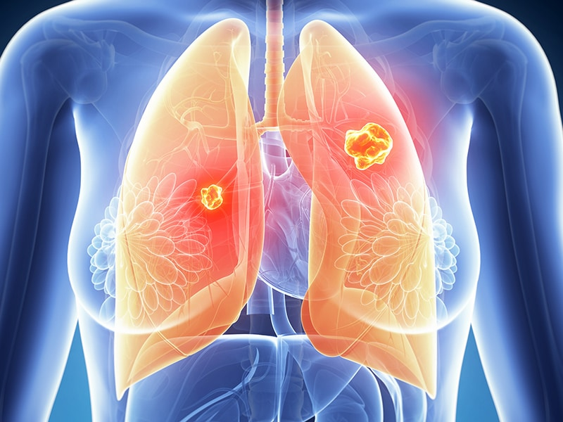 Immunotherapies for NSCLC 'Perform Well in Real World'