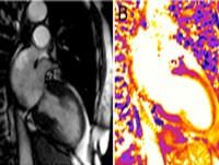 pediatric thromboembolism: background, etiology, epidemiology, Cephalic Vein