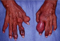 drug treatment of chronic gout recipes suitable for gout sufferers