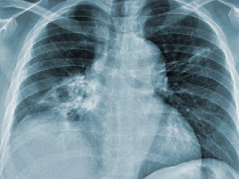 abdominal aortic aneurysm imaging guidelines