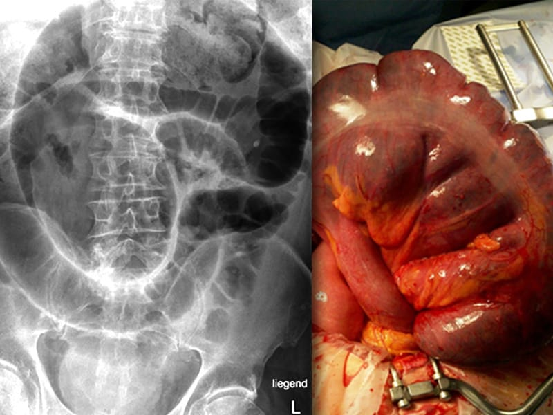 intestinal obstruction Small bowel obstruction (sbo) presents as a constellation of symptoms including  abdominal pain, nausea, vomiting, lack of, or paucity, of bowel movements and.
