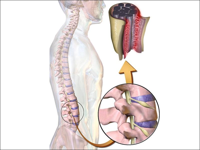 Chronic Back Pain May Be Arachnoiditis