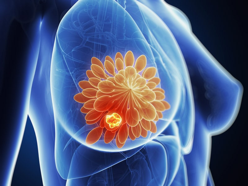 Triple-Negative Breast Cancer Seeing Positive Results