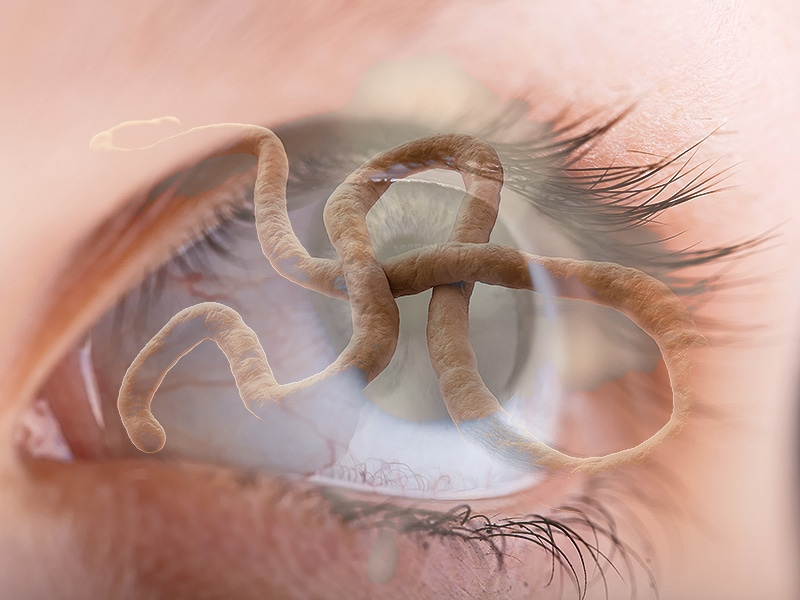 Ebola-Related Uveitis: Treat One, Treat Many