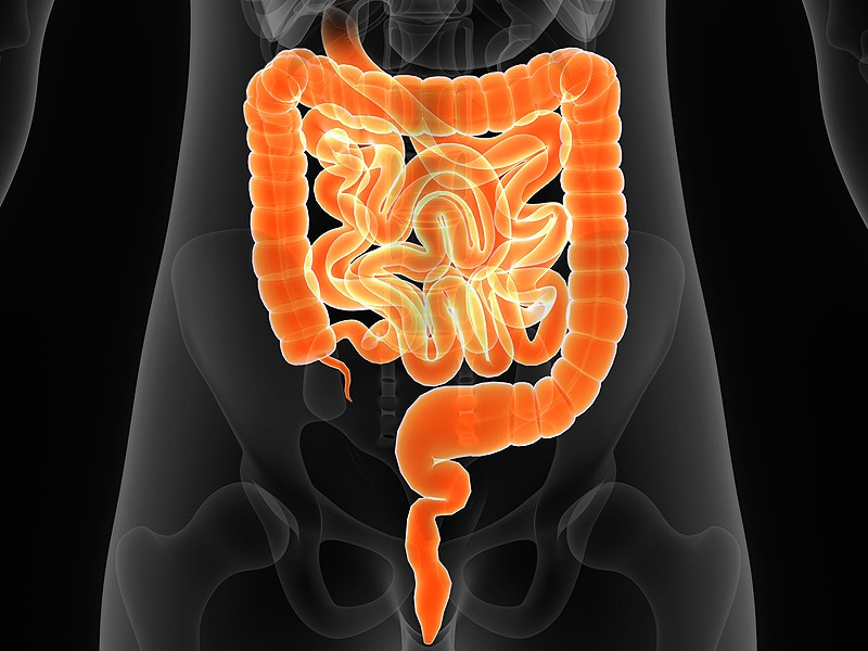 Surveying the Latest Findings in Inflammatory Bowel Disease