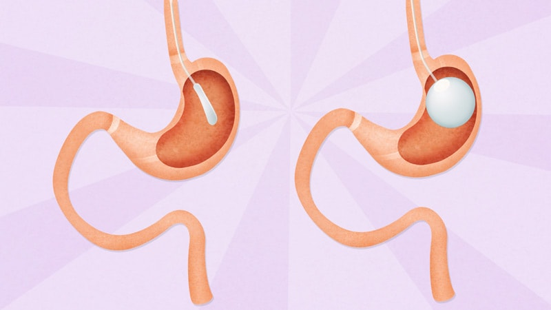 Pharmacotherapy Boosts Weight Loss Effects of Intragastric Balloons