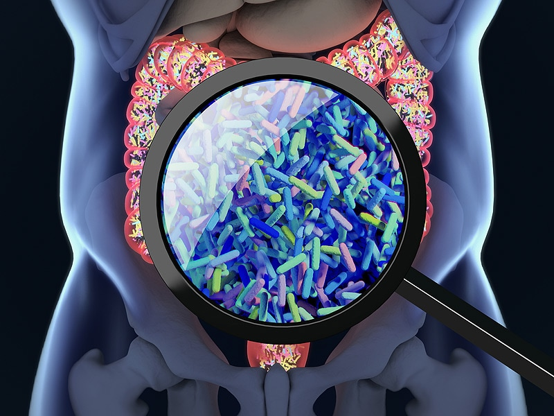 Gut Microbiome May Be Key Variable in Immunotherapy Efficacy