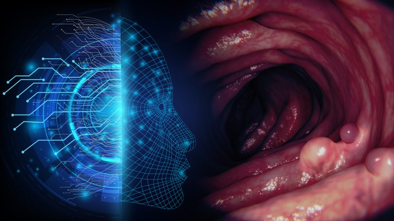 AI in GI: The Future of Diagnosing Disease in Gastroenterology