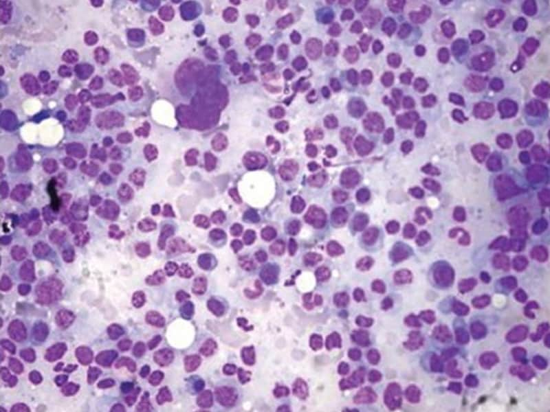 Cellular Immunotherapy for Multiple Myeloma Advancing Rapidly