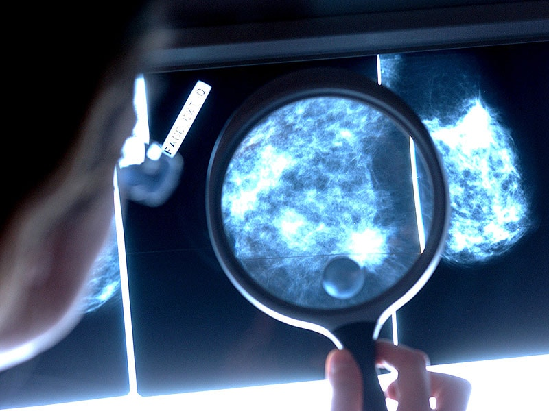 Neratinib Lowers Recurrence in High-Risk HER2+ Breast Cancer