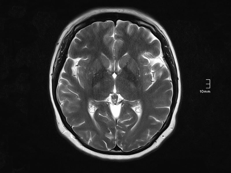 Wernicke Encephalopathy in a 15-Year-Old Girl: A Case