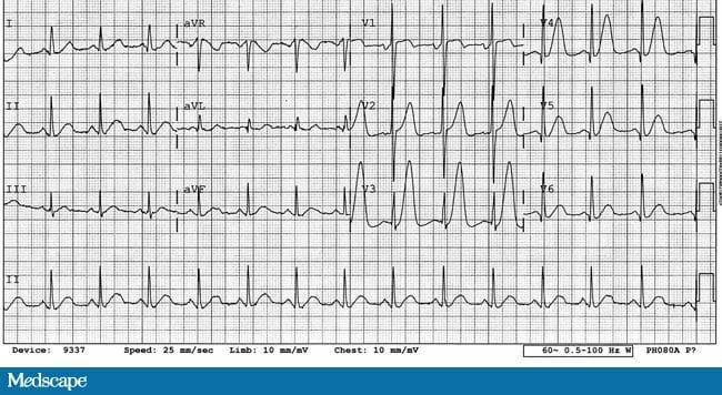 sc 1 st  Medscape & Series of Tall T Waves (I)