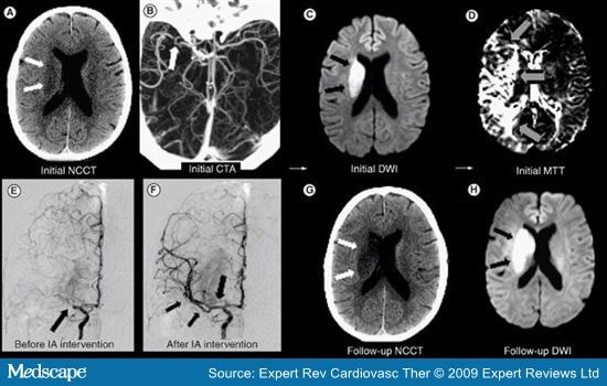 Neuroimaging of Ischemic Stroke With CT and MRI