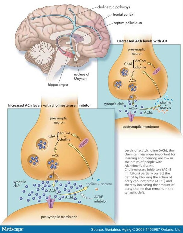 Cholinesterase Inhibitors In Early Alzheimer S Disease