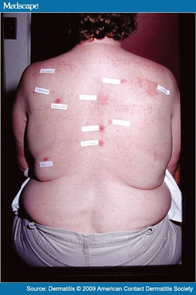 An Interesting Case of Joint Prosthesis Allergy