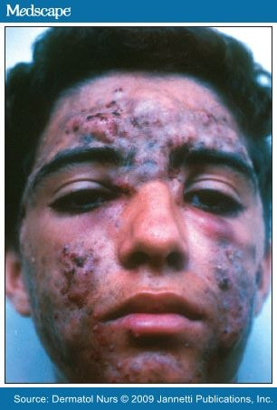 Acne Vulgaris Review And Guidelines