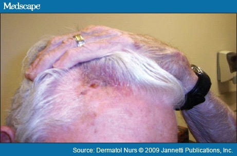 A Bruise-Like Patch to the Forehead and Scalp