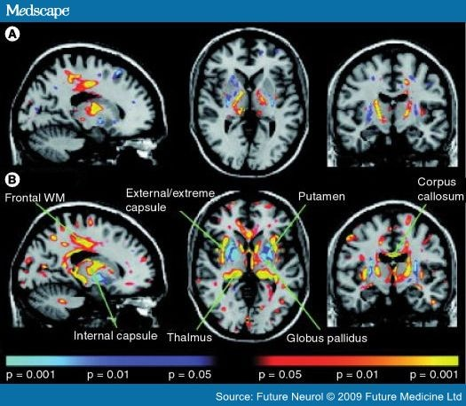 early detection of huntington u0026 39 s disease