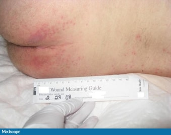 In This Corner: The Unavoidable Pressure Ulcer