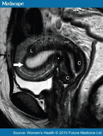 Mri and pet scans for primary staging and detection of cervical mri and pet scans for primary staging and detection of cervical cancer recurrence ccuart Image collections