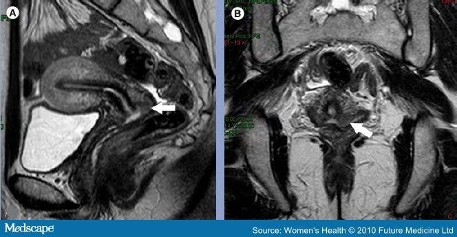 Cervix mri anatomy