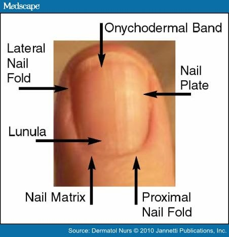 Nail Disorders In Children