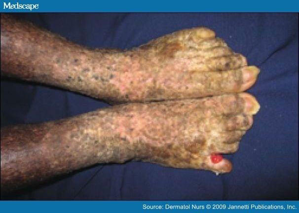 Acitretin Ehk Pg Toe Web Pyogenic Granuloma