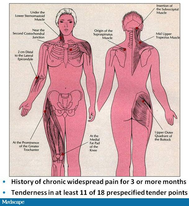 Fibromyalgia and Overlapping Conditions: Comprehensive