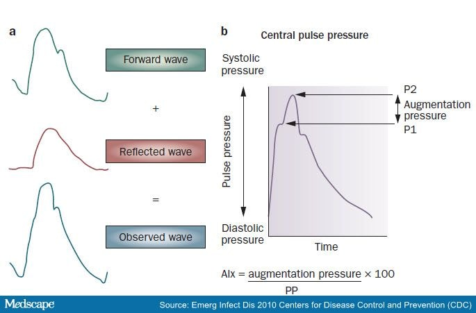 the systolic blood pressure measurement is a reflection of