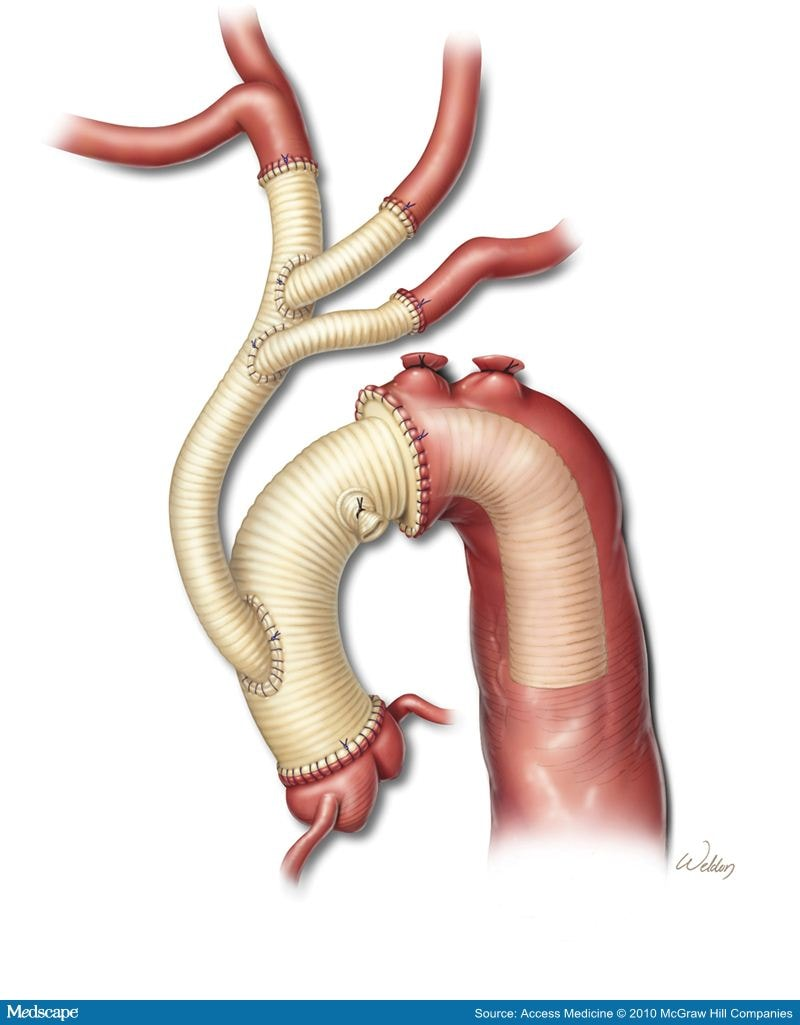 Aortic Dissections And Thoracic Aneurysms An Update
