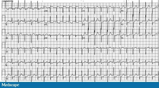 What Is Svt >> What Is The Clinical Significance Of Electrical Alternans In This